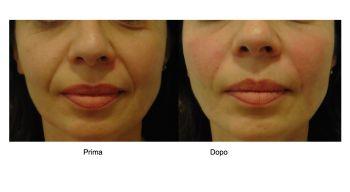 Filler acido ialuronico per il contorno della bocca