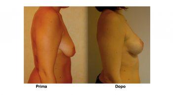Mastopessi aumento seno