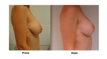 Intervento di mastopessi al seno