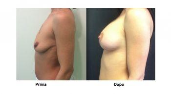 Mastopessi lifting al seno