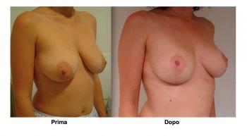 Foto mastopessi vista frontale - lifting seno