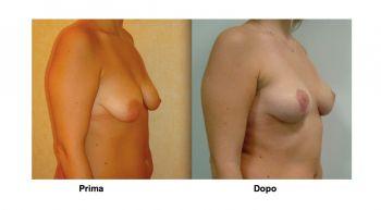 Mastopessi per rassodare il seno