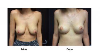 Mastopessi per rimodellare il seno