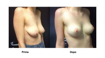 Mastopessi sollevamento seno