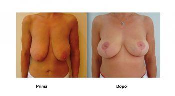 Foto mastopessi risollevare seno