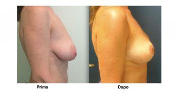 Mastopessi per sollevare il seno