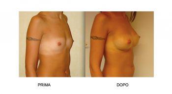 Mastoplastica additiva per l'aumento del seno