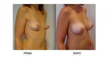 Mastoplastica additiva protesi mammarie anatomiche