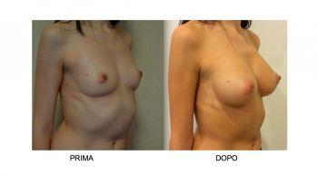 Mastoplastica additiva per aumento seno