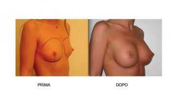 Mastoplastica additiva con le protesi al seno