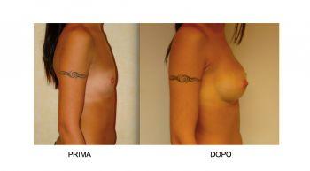 Aumento seno veduta laterale