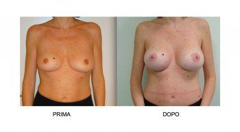 Mastoplastica additiva per l'aumento del volume del seno