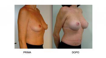 Intervento di chirurgia plastica al seno