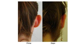 Intervento di Otoplastica - correzione orecchie ad ansa